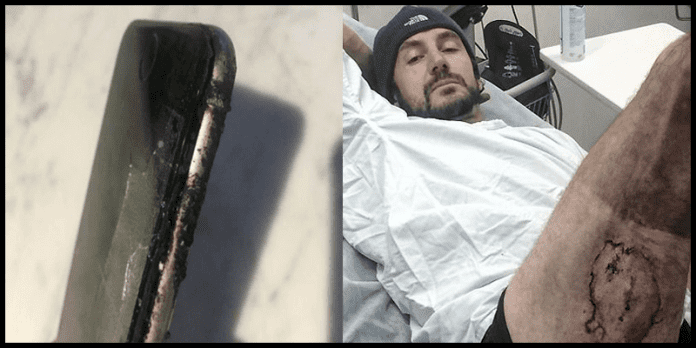 Man Suffers Serious Burns After His iPhone 6 Explodes
