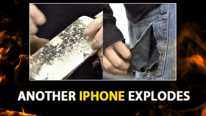 Another iPhone Explodes In Student's Back Pocket! Catches Fire During Class
