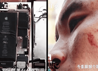iPhone 7 Explodes On Man's Face While Recording Video