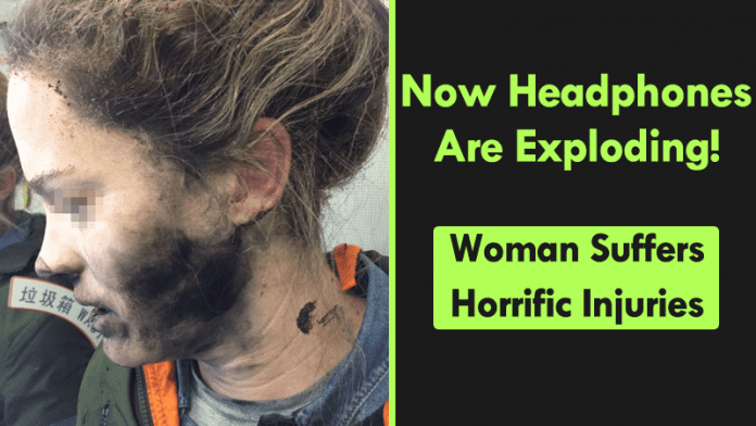 Now Headphones Are Exploding! Woman Suffers Horrific Injuries