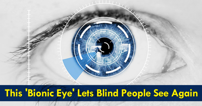 This 'Bionic Eye' Lets Blind People See Again